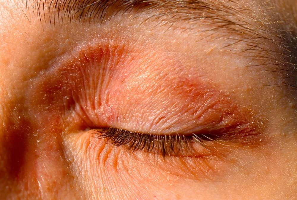 person with eczema on eye and face