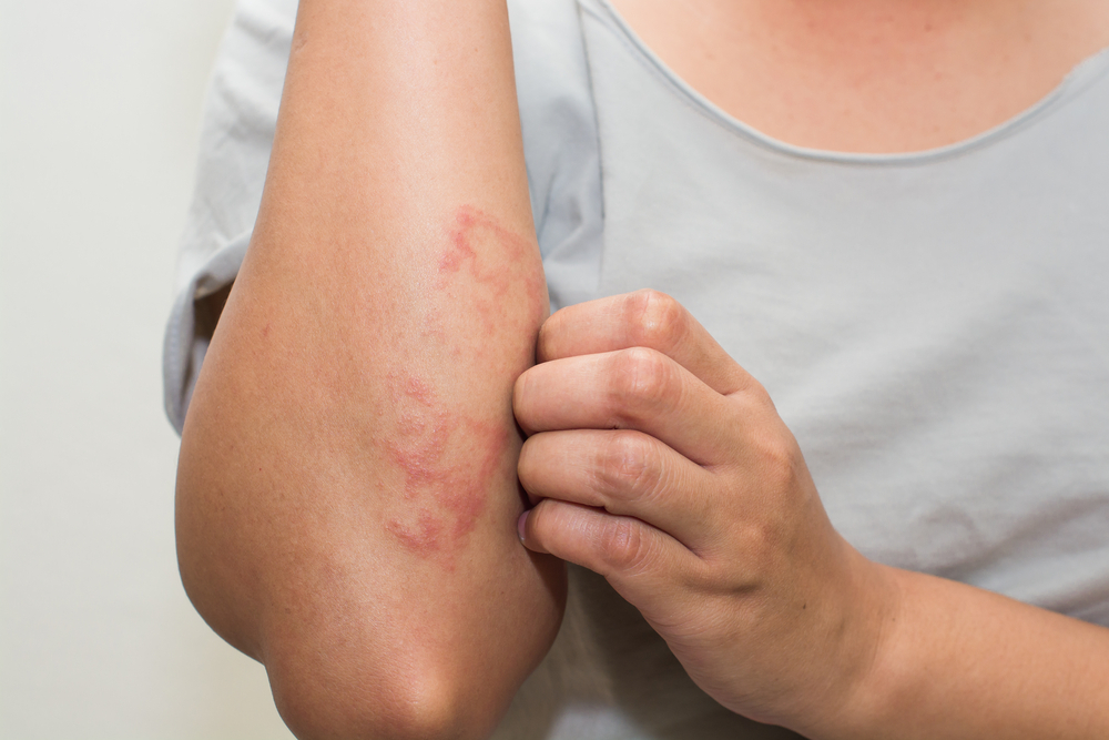 What is the difference between dermatitis and eczema?