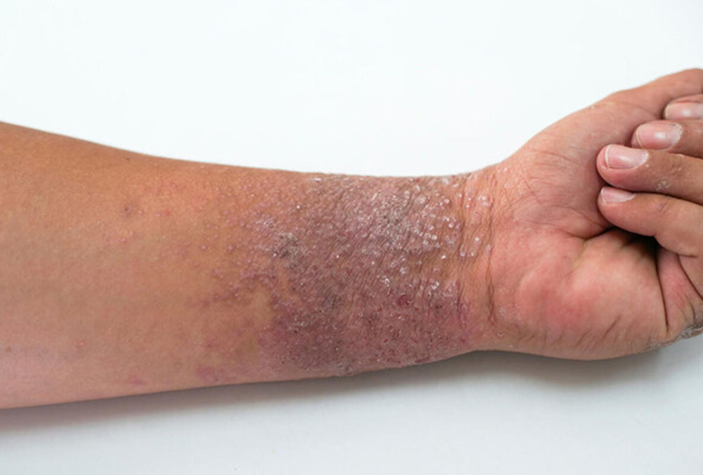 person with eczema on arm