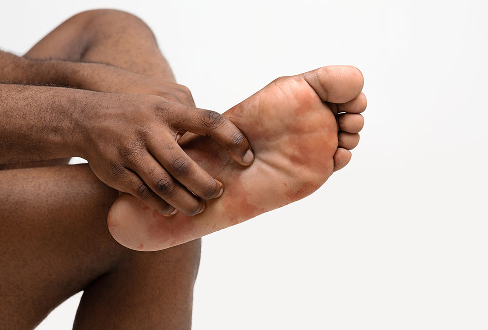 person with eczema on foot
