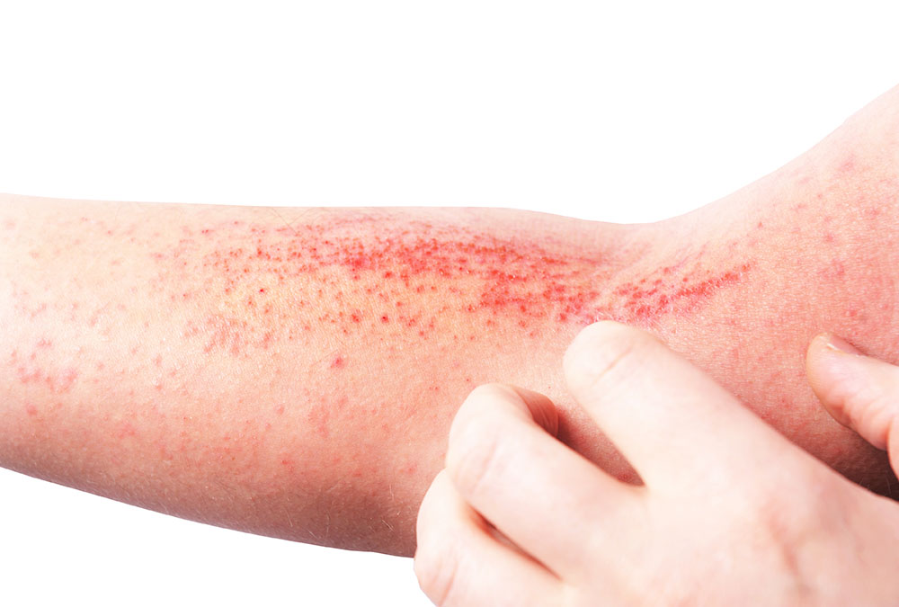 person scratching arm with eczema