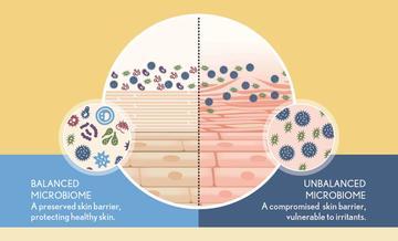 Balanced and Unbalanced Microbiome