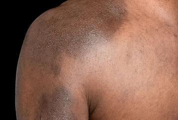 Post-inflammatory pigmentation on eczematous skin