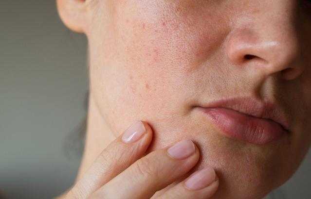 What Causes Acne Plus Breakout Treatment Prevention Aveeno