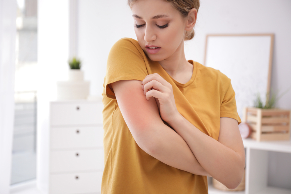 Woman scratching arm indoors, space for text. Allergy symptoms